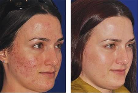 плазмолифтинг для лица фото до и после отзывы